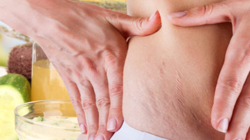 Consejos para prevenir la aparición de estrías